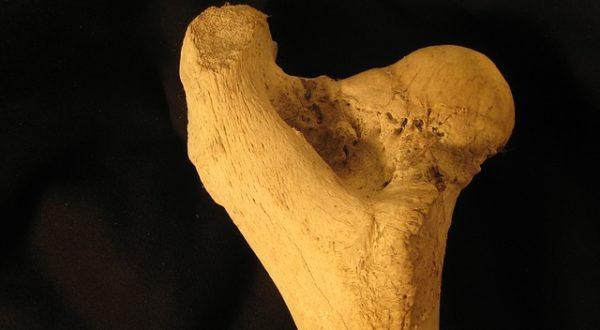 Knochen, Muskeln & Sturzrisiko
